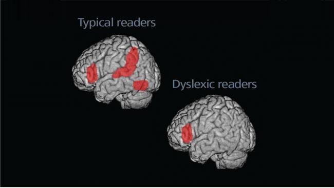 Dyslexia Today