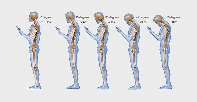 spine-phone-looking-down-neck-texting1