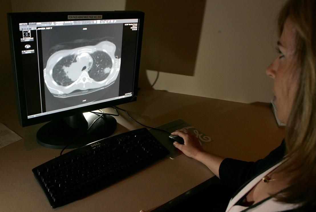 скенер, здраве, глиобластома, рак