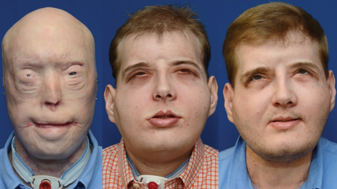 160824174557-facetransplant1-full-169
