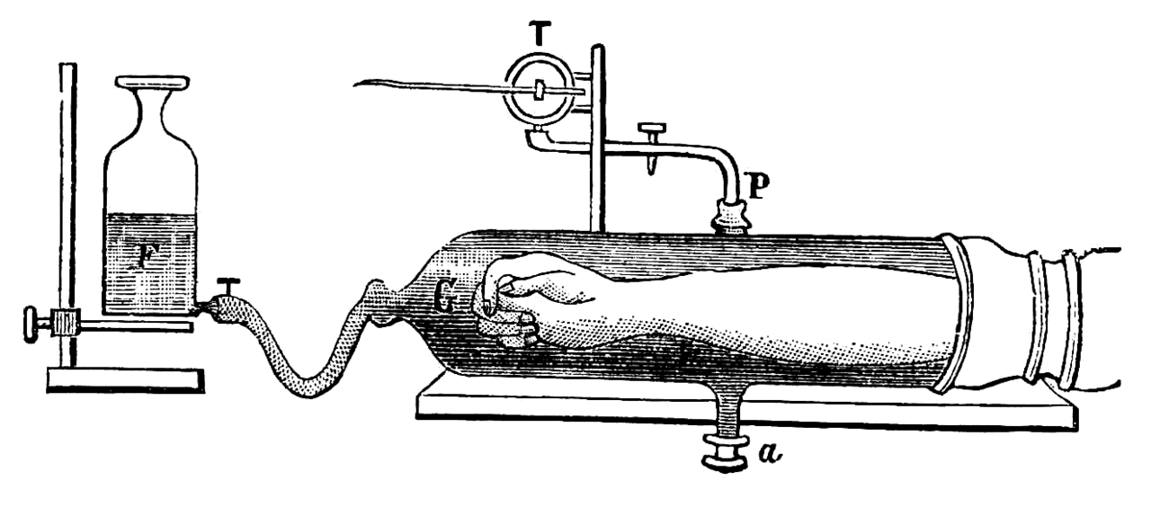 Pletismograph