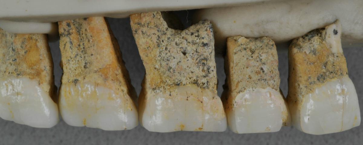 homo-luzonensis-teeth-banner-l