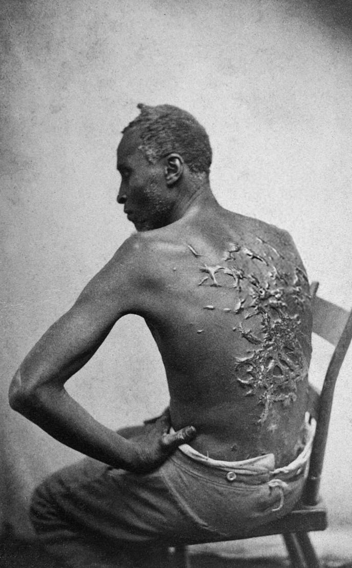 Scourged_back_by_McPherson_&_Oliver,_1863,_retouched