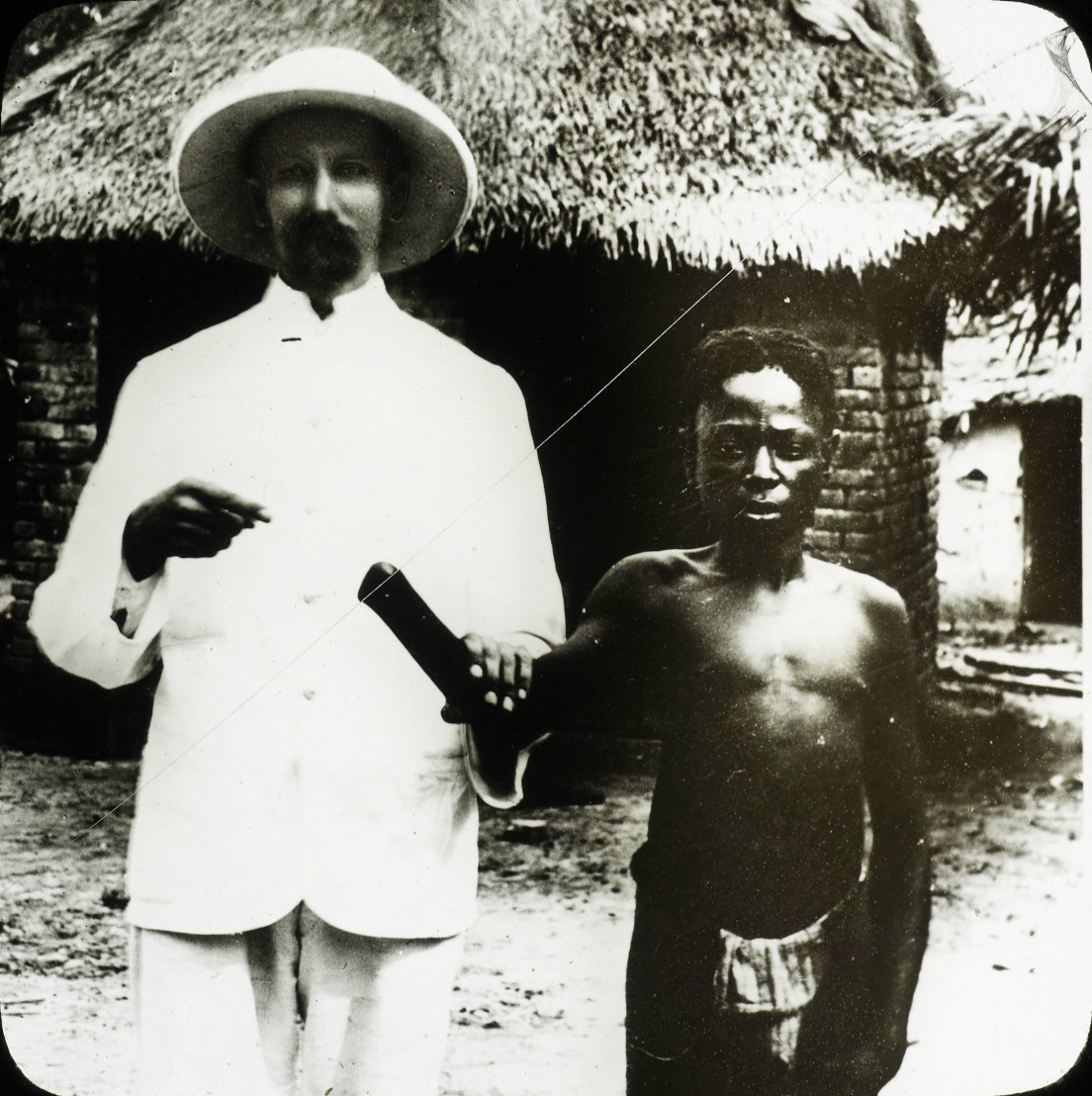 Victim_of_Congo_atrocities,_Congo,_ca._1890-1910_(IMP-CSCNWW33-OS10-19)