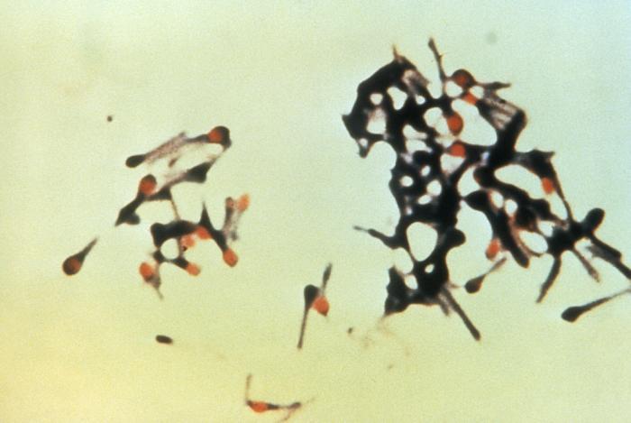 Clostridium_tetani