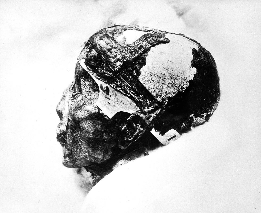 L0019350 A mummified human skull