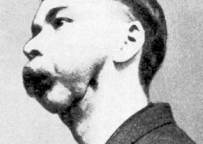 Match_factory_worker_with_phossy_jaw