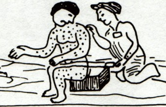 Measles_Aztec_drawing
